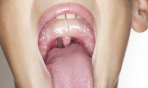 Во рту на миндалине сильный нарост достает до язычка
