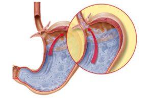 Дуоденит, недостаточность кардии