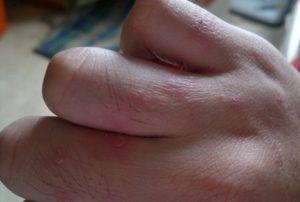 Между пальцами покраснение и шелушение