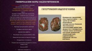 Узловая гиперплазия левого надпочечника