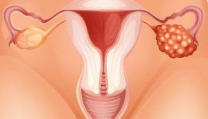 Воспаление яичников при миоме лечение