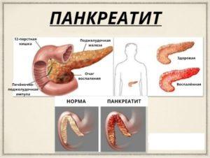 Можно ли вылечить панкреатит?