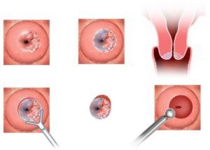 Электроконизация при разрывах шейки матки после родов