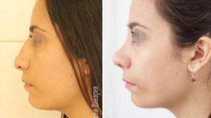 Деформация хряща крыла носа