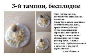 Можно ли использовать тампоны с мазью вишневого при месячных? Диагноз обострение хронического сальпингоофорита.