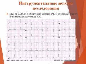 ЭКГ описание, синусовый ритм, вертикальное положение ЭОС