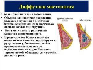 Можно ли принимать джес при диффузной мастопатии?