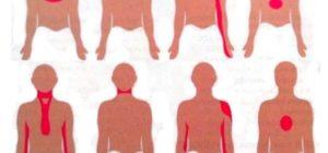 Напряжение в левой стороне груде и в левой руке