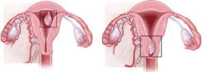 Месячные после удаления плацентарного полипа