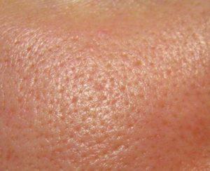 Волосы вокруг соска, расширенные поры