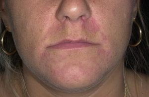 Дисбактериоз, покраснение лица и сыпь, как лечить?