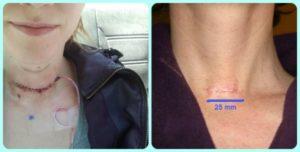 Давление после операции удаления щитовидки