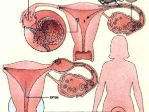 Могу ли я быть беременна после гидротубации