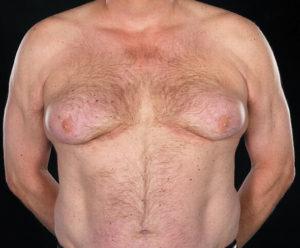 Что делать с отвисшей грудью?