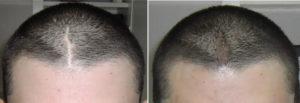 Чем обработать чтобы не было шрама и волосы расли?