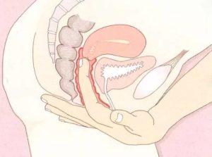 Дискомфорт во влагалище во время беременности