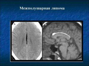 Дисгенезия мозолистого тела, Перикаллезная липома