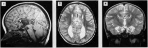 ВПР ЦНС: сужение полости прозрачной перегородки, гипоплазия мозолистого тела