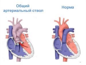 Впс у плода: общий артериальный ствол, ДМЖП