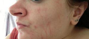 Красная полоска на лице