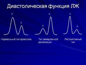 Нарушение диастолической функции ЛЖ и дилатация