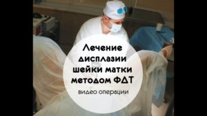 Дисплазия шейки матки лечение методом ФТД