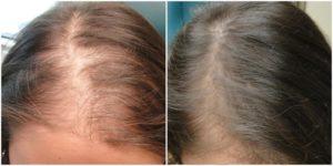 Выпадение волос при приеме Циклодинона