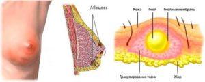 Воспаление атеромы молочной железы