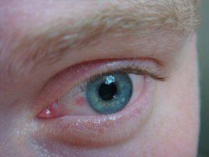 Красная дырочка в уголке глаза