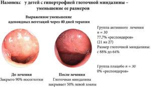 Вегетация аденоидов 2 степени и протаргол