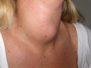 Могут ли быть высыпания из-за проблем с щитовидной железой?