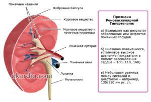 Влияние камней в почках на артериальное давление