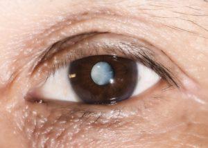 Черные точки, потеря зрения