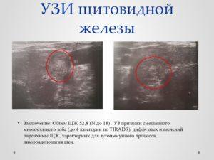Диффузные изменения щитовидной железы с узлообразованиями