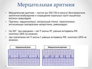 Мерцательная аритмия после 2-х месяцев установки кардиостимулятора