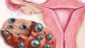 Дисфункция яичников (скудные месячные)