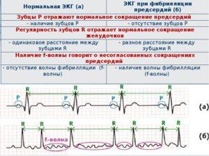 Мерцательная аритмия: пароксизмальная форма фибриляции предсердий-Эгилок или Беталок Зок?