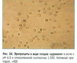 Эритроциты в моче песок