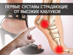 Можно ли носить каблуки, при грыжах позвоночника?