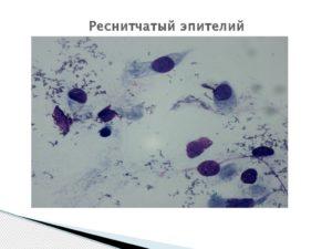 Микроскопия мазка носового секрета