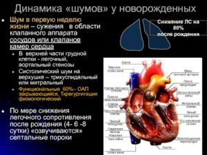 Врожденный порок сердца- ООО