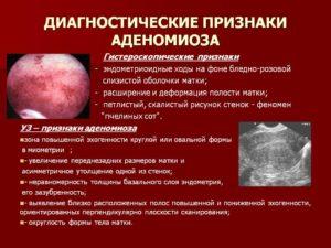 Микроаденоматоз тела матки