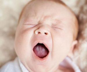 Молочница у девочки 3 годика