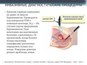 Узи при беременности и угроза прерывания