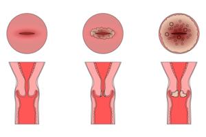 Молочница после биопсии