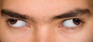 Косит глаз