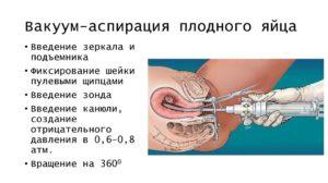 Месячные после ваккум аспирации замершей беременности