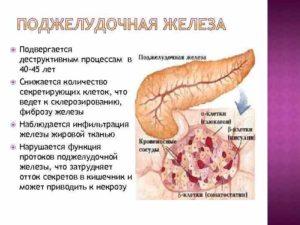 Диффузные изменения поджелудочной железы по типу жировой инфильтрации