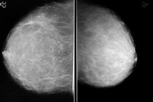 На рентгене груди и обычном УЗИ ничего нет