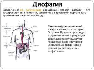 Дисфагия или нервы?
